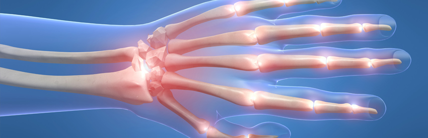Arthritis and medical marijuana