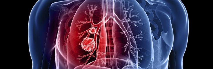 medical marijuana and lung cancer